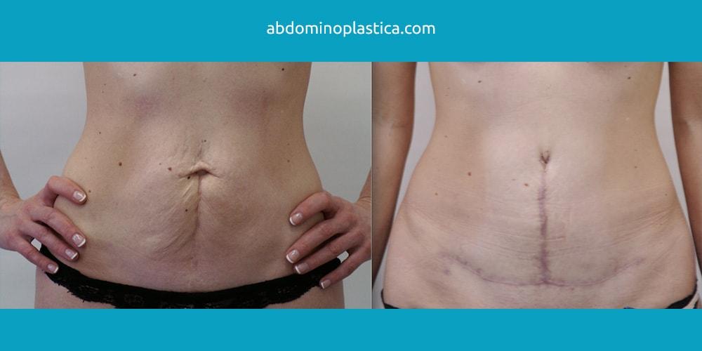 Абдоминопластика: фото ДО и ПОСЛЕ