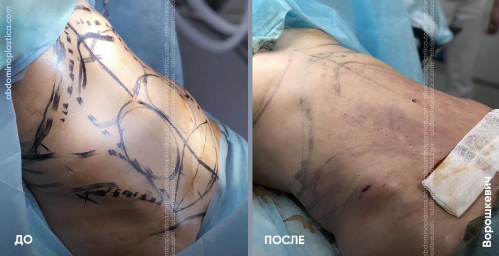 Миниабдоминопластика — фото до/после. Хирург Ворошкевич П. А.